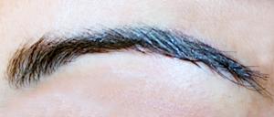 greffe des sourcils docteur philippe viethel greffes de cheveux et implants capillaires lyon. Black Bedroom Furniture Sets. Home Design Ideas